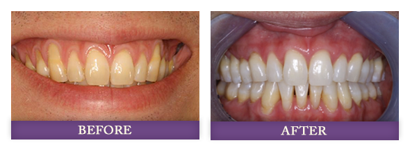 Before and after receding gums surgery