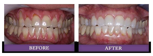 Charolotte gum rejuvenation patient