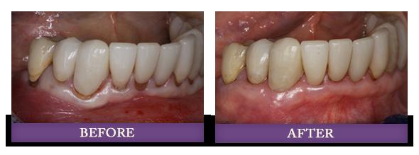 Charlotte pinhole gum rejuvenation treatment patient before and after