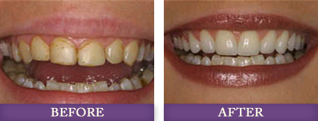 Before and after cosmetic dentistry services at Adanced Dentistry of Charlotte