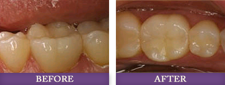 Cosmetic and restorative dentistry repair and maintenance before and after photos