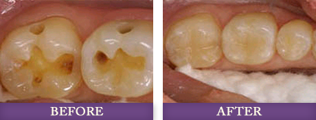 Replacing amalgam fillings with Dr. Chris Bowman at Advanced Dentistry of Charlotte