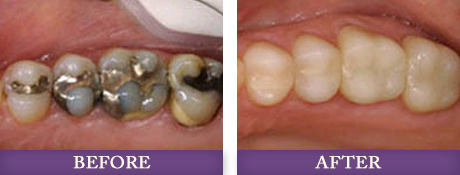 Tooth colored fillings replacing dental amalgam fillings photos