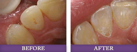 Before and after gum contouring treatment at Advanced Dentistry of Charlotte