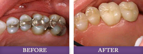 Dental fillings and replacement fillings patient in Charlotte