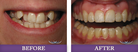 Restorative dentistry patient before and after photos at Advanced Dentistry of Charlotte