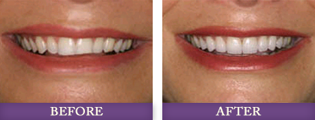 Before and after smile restoration photos with Charlotte dentist Dr. Chris Bowman