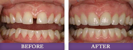 Patient with large gap in in front teeth fixed with orthondics in Charlotte