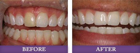 Before and after photos of patient with white teeth at Advanced Dentistry of Charlotte