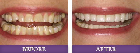 Patient photos of cosmetic dentistry procedure at Myers Park dentist