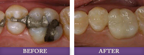 Myers park dentist replacing and repairing amalgam dental fillings
