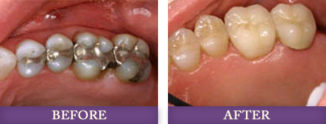 Before and after dental fillings replacement with Dr. Bowman near Dilworth