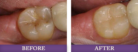 Before and after photos with Charlotte dentist Dr. Chris Bowman