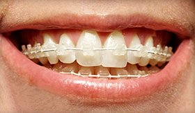 Close up of Six Month Smiles clear braces available to patients near Myers Park.