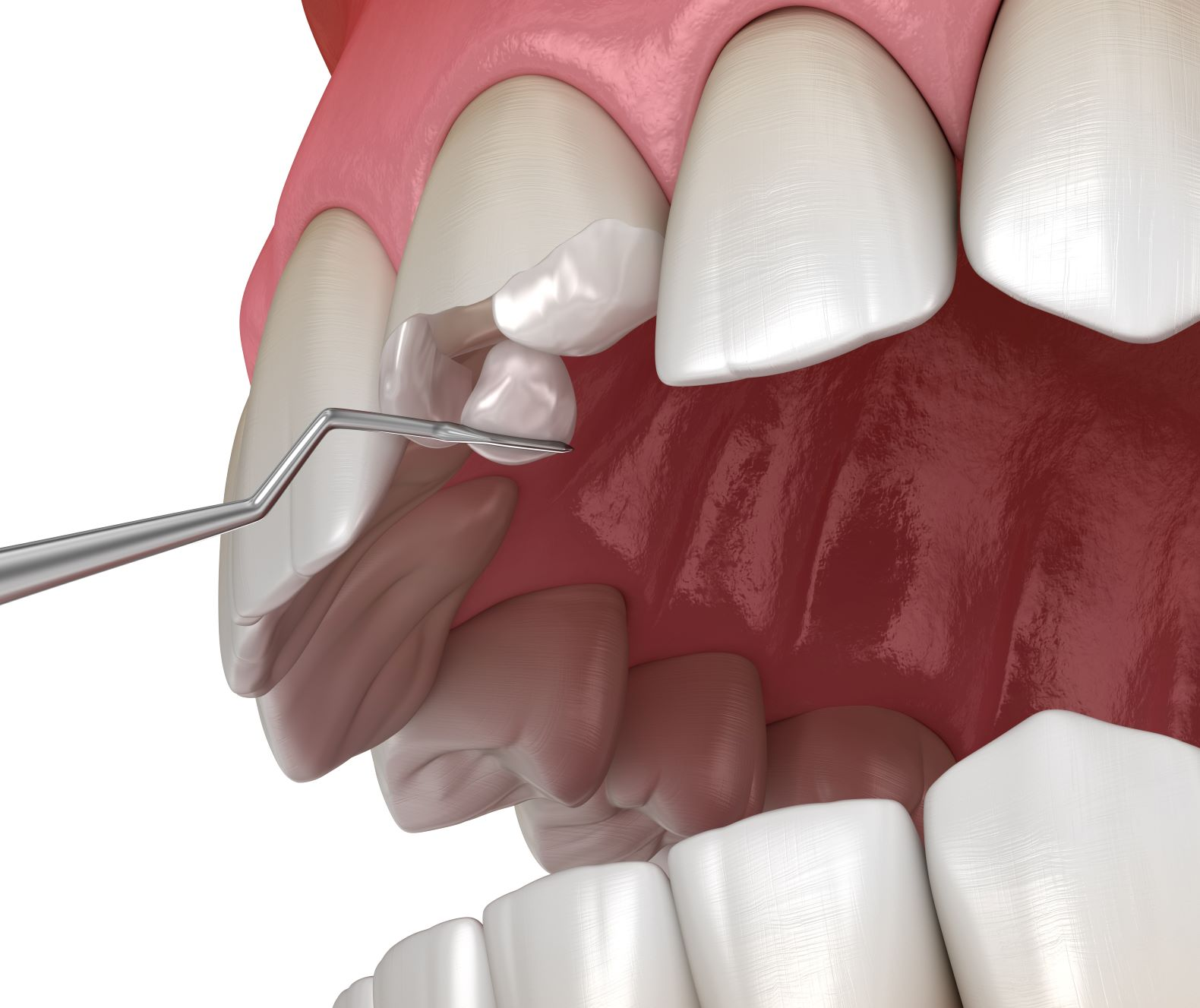 Chipped Tooth Repair - Cosmetic Dental Bonding - Advanced Dentistry of Charlotte